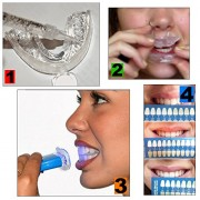 PROFESSIONAL-TEETH-WHITENING-KIT-By-Dreow-Home-Bleaching-System-of-Carbamide-Peroxide-Gel-Free-Remineralizing-Syringe-Enhance-Your-Smile-Now-100-Guarantee-Great-Gift-Idea-0-2