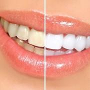 Smilebriter-Teeth-Whitening-Gel-Pens-60-Day-Supply-0-1