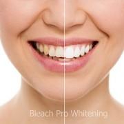 Teeth-Whitening-Gel-Syringes-44-Carbamide-Peroxide-Tooth-Bleaching-Gel-Dispensers-0-2
