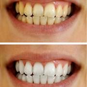 Teeth-Whitening-Gel-Syringes-44-Carbamide-Peroxide-Tooth-Bleaching-Gel-Dispensers-0-4
